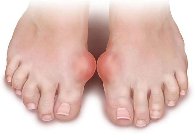 diet for uric acid high treatment for gout forum what food to avoid to reduce uric acid