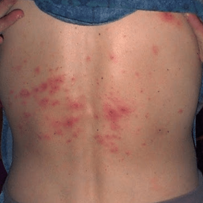 Natural Oral Treatment For Scabies