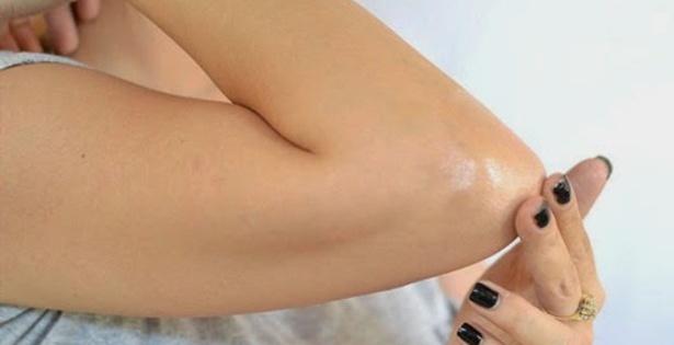 dark elbows home remedies