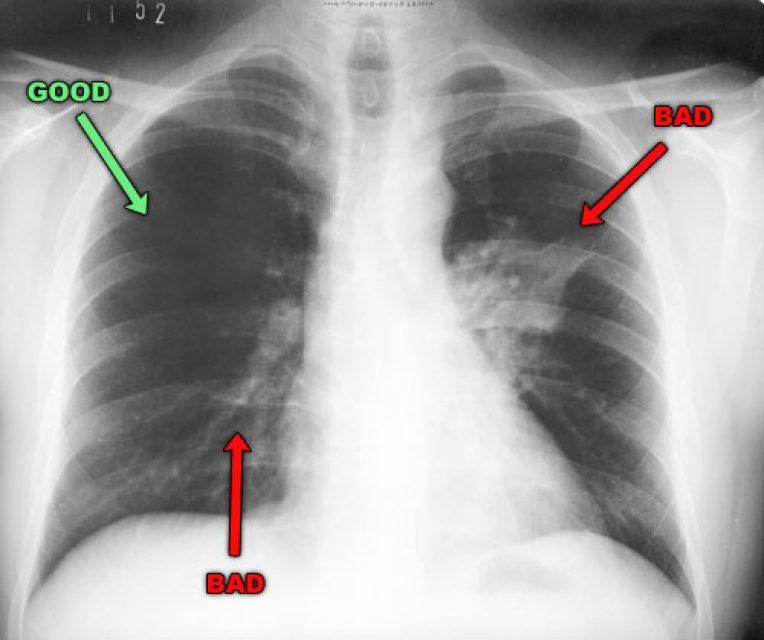 Pneumonia X Ray